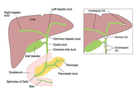 Liver_CC Diagram WEB.jpg