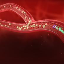SIRT - Microcatheter releasing microspheres